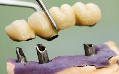 Dental Implants in Thailand