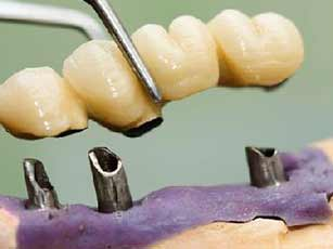 Dental Implants in Thailand