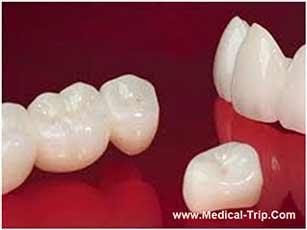 CAD CAM Dental Crowns - Costa Rica