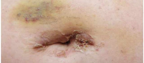 One incision gastric sleeve in Mexico