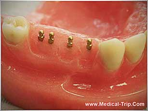 Dental Implants for Missing Teeth